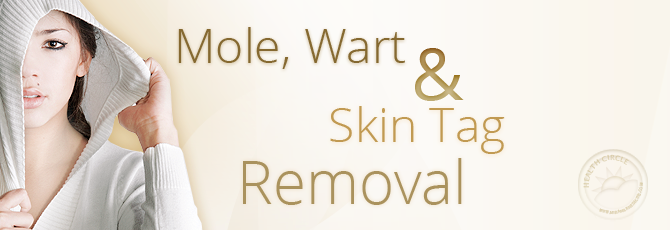 Mole, Wart, and Skin Tag Removal